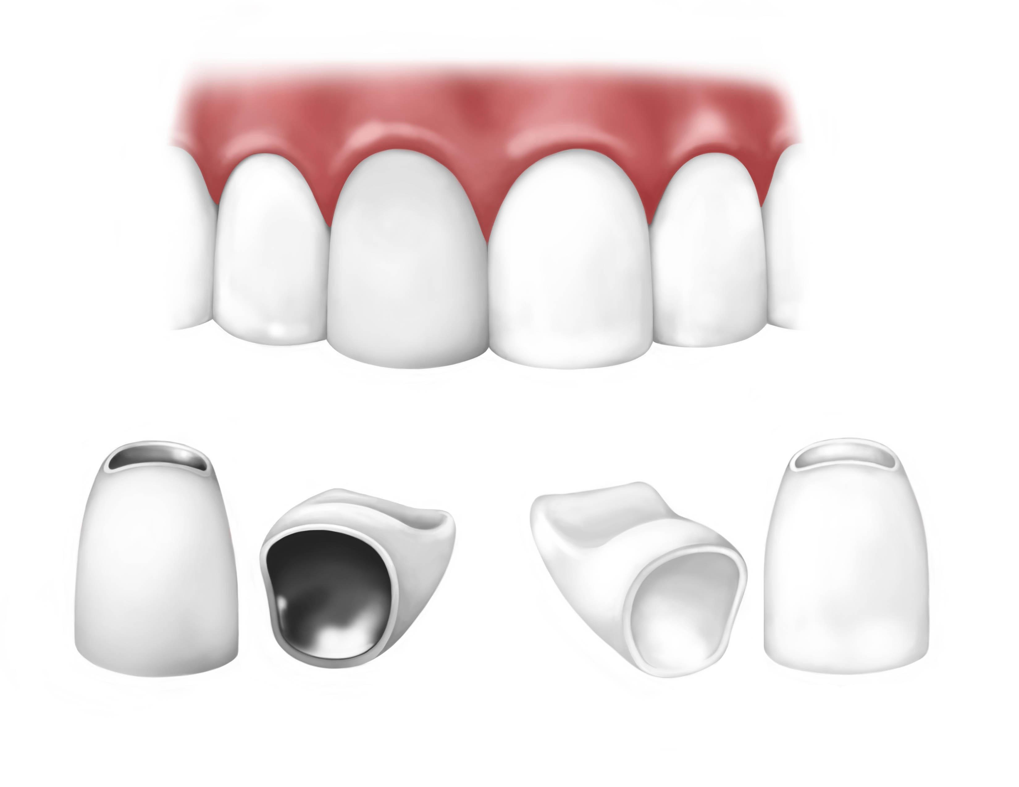 canalul dinților poate provoca pierderea în greutate alăptarea copilului nu poate pierde în greutate