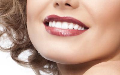 Fatetele dentare sau reteta zambetului de portelan – Elle